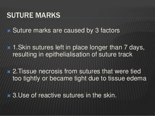  Contra indicated when it is not possible to maintain atleast 5mm distance from the stapled skin to the underlying bone a...