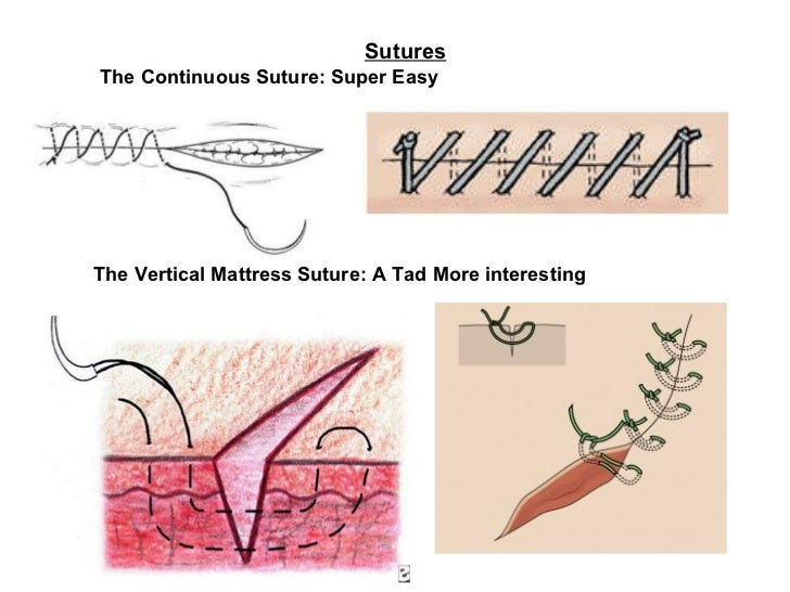 Sutures   The Continuous Suture: Super Easy   The Vertical Mattress Suture: A Tad More interesting