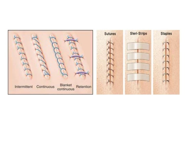 Contd… Buried sutures • This type of suture is applied so that the suture knot is found inside (that is, under or within t...
