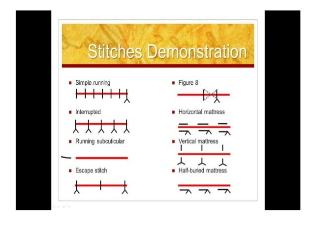 SUTURE REMOVAL • Sutures are removed will depend on where they are on the body. According to American Family Physician, so...