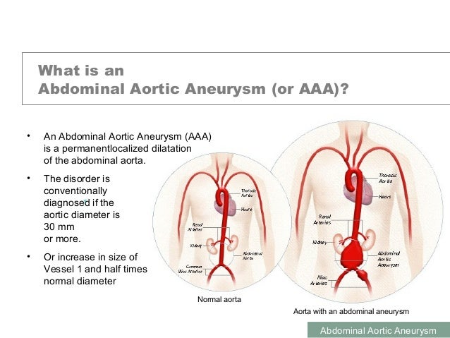 abdominal aortic aneurysm, Human Body