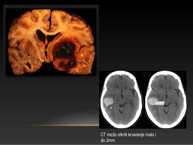 DEGENERATIVNE BOLESTI SŽS-A – MULTIPLA SKLEROZA • Multipla skleroza (MS), (lat. Sclerosis multiplex) je neurodegenerativno...