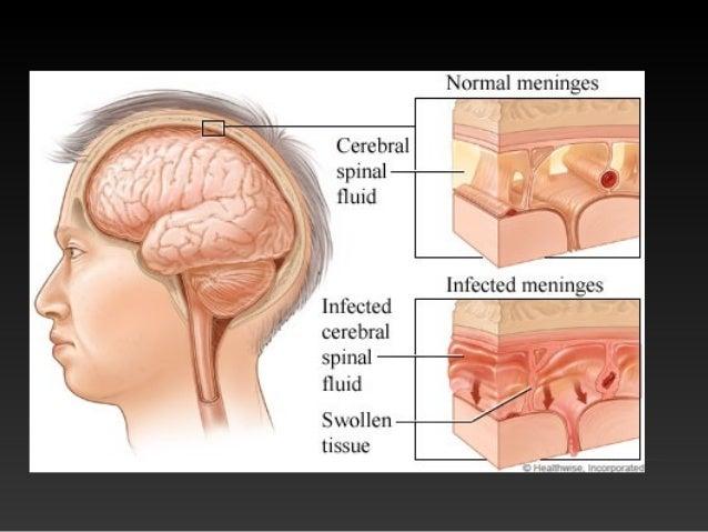 • Kada bolest napadne um, pamćenje je vrlo kratkotrajno. Informacije koje tada čovjek dobije zaboravlja u roku od nekoliko...