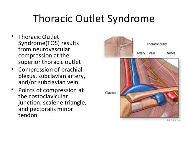 SVS- Thoracic Outlet Syndrome Presentation