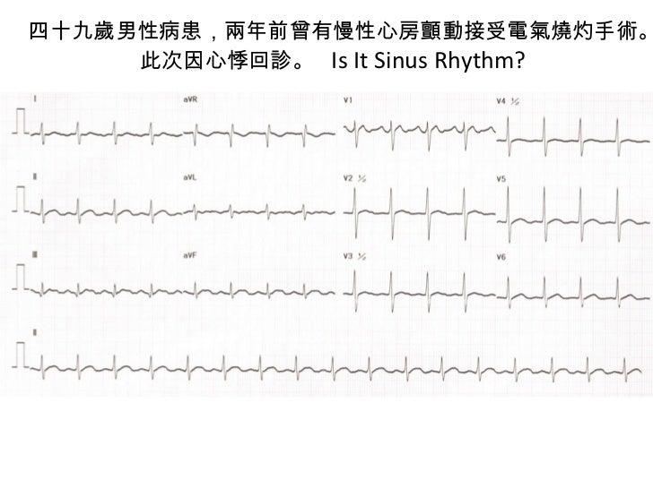 四十九歲男性病患,兩年前曾有慢性心房顫動接受電氣燒灼手術。此次因心悸回診。  Is It Sinus Rhythm?