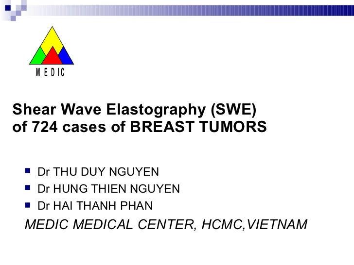 Shear Wave Elastography (SWE)  of 724 cases of BREAST TUMORS <ul><li>Dr THU DUY NGUYEN </li></ul><ul><li>Dr HUNG THIEN NGU...