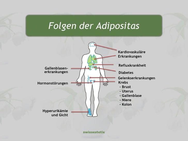 Übergewicht und Diabetes: Neue Erkenntnisse und Risiken