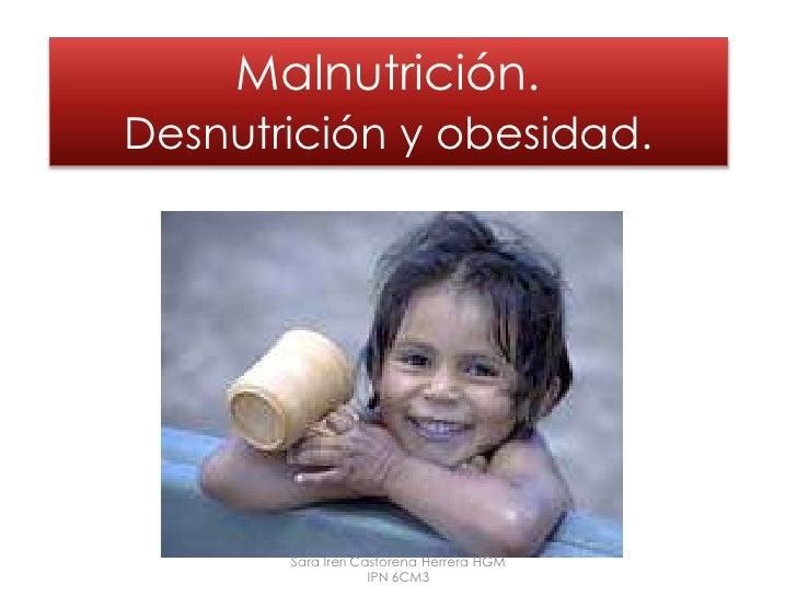 Malnutrición.Desnutrición y obesidad.<br />Sara Ireri Castorena Herrera HGM IPN 6CM3<br />