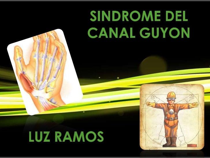 Síndrome neurológico por elatrapamiento o compresión delnervio cubital a su paso por elcanal de Guyón.