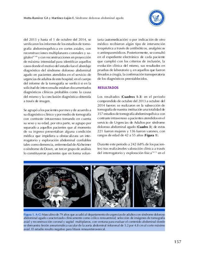 157 Motta-Ramírez GA y Martínez-Luján E. Síndrome doloroso abdominal agudo del 2013 y hasta el 1 de octubre del 2014, se v...