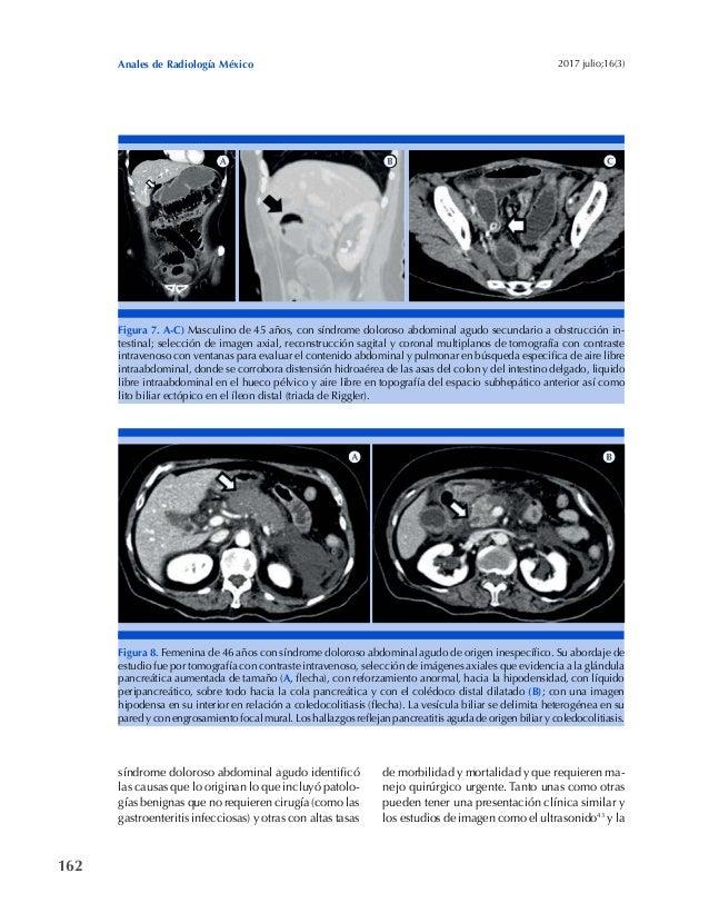 162 Anales de Radiología México 2017 julio;16(3) Figura 7. A-C) Masculino de 45 años, con síndrome doloroso abdominal agud...