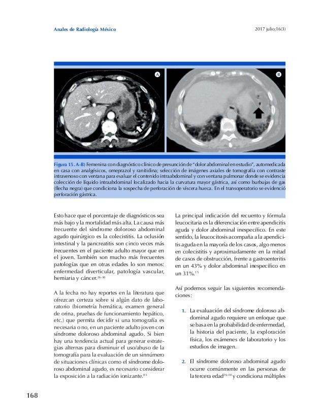 168 Anales de Radiología México 2017 julio;16(3) Esto hace que el porcentaje de diagnósticos sea más bajo y la mortalidad ...