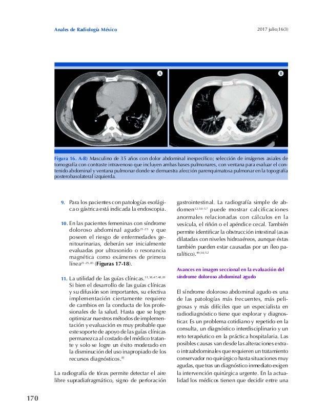 170 Anales de Radiología México 2017 julio;16(3) Figura 16. A-B) Masculino de 35 años con dolor abdominal inespecífico; se...