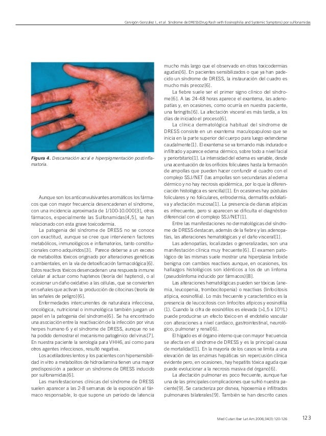 Med Cutan Iber Lat Am 2006;34(3):120-126 Cervigón González I., et al. Síndrome de DRESS(Drug Rash with Eosinophilia and Sy...