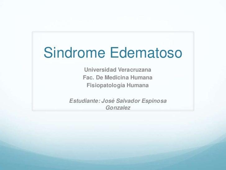 Sindrome Edematoso       Universidad Veracruzana       Fac. De Medicina Humana        Fisiopatología Humana   Estudiante: ...