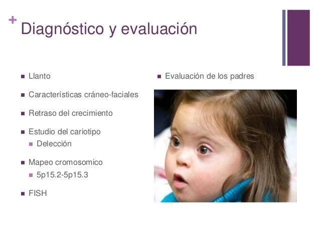 SINDROME DEL MAULLIDO DE GATO PDF DOWNLOAD