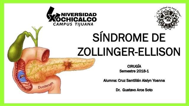 SÍNDROME DE ZOLLINGER-ELLISON CIRUGÍA Semestre 2018-1 Alumna: Cruz Santillán Aislyn Yoanna Dr. Gustavo Arce Soto