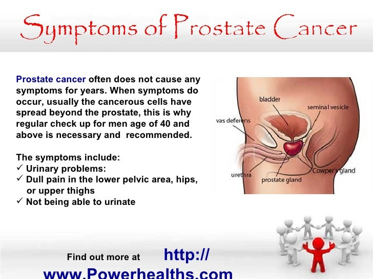 how to diagnose prostate cancer