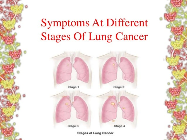 Stage 4 Lung Cancer >> Symptoms At Different Stages Of Lung Cancer