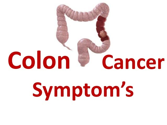 how to avoid colon cancer