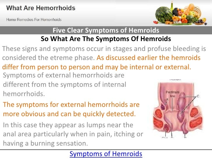 know the 5 clear symptoms of hemroids, Cephalic Vein