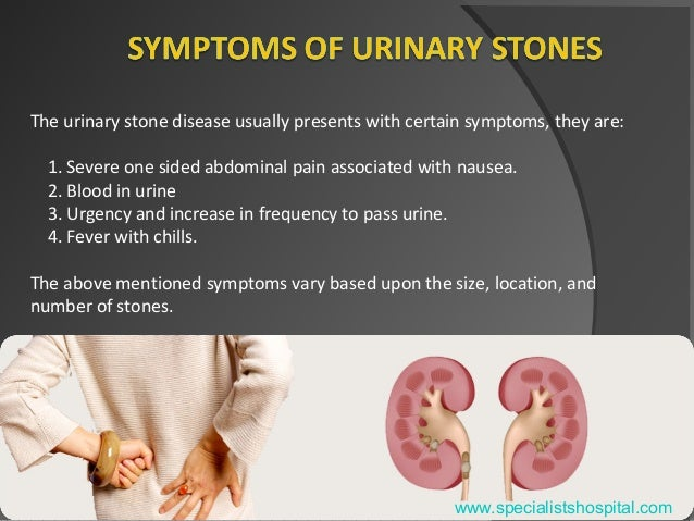 Urinary Stones Treatment - Your Ultimate Guide