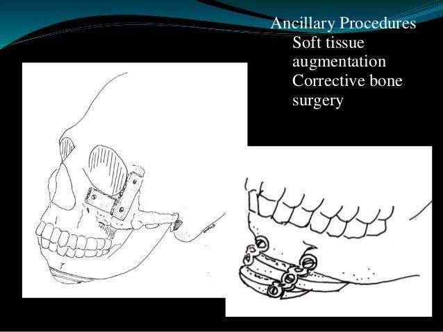 Craniosynostosis   Primary craniosynostosis: a primary defect of ossification   Secondary craniosynostosis: a failure of...