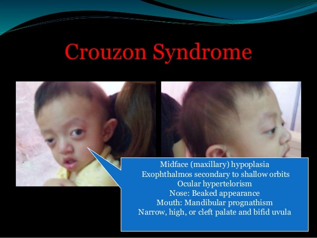 Apert Syndrome   Extremities and digits  Syndactyly involves the  hands and feet with partial-to-  complete fusion of the...