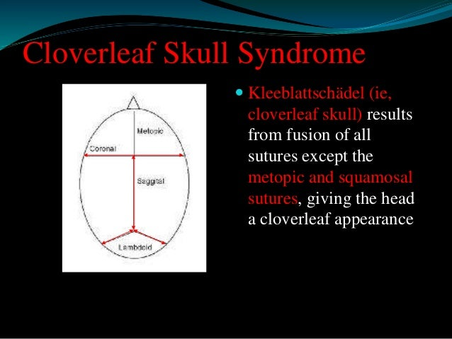 Cloverleaf Skull Syndrome   Many syndrome present with cloverleaf skull including  most of the acrocephalopolysyndactylie...