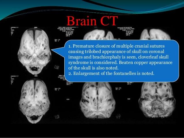 Five levels of Tessier's craniofacial  framework.  Level A, cranial vault.  Level B, orbitofrontal unit.  Level C, lower o...