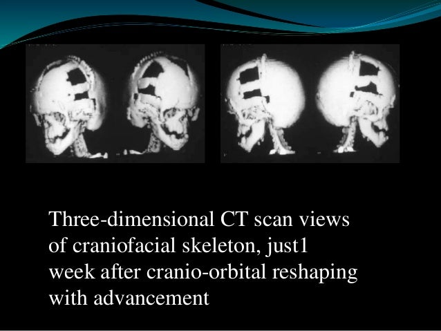 Goldenhar Syndrome  Oculo-Auriculo-Vertebral Dysplasia  Bilateral involved  Sporadic with weak genetic component