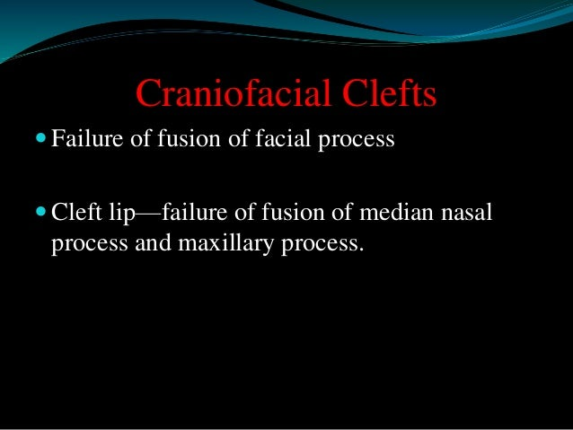 Craniofacial Clefts   Failure of fusion of facial process   Cleft lip—failure of fusion of median nasal  process and max...