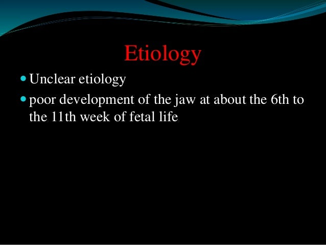 Etiology   Unclear etiology   poor development of the jaw at about the 6th to  the 11th week of fetal life