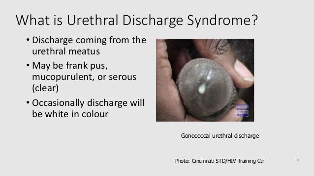 itching urethra male clear discharge