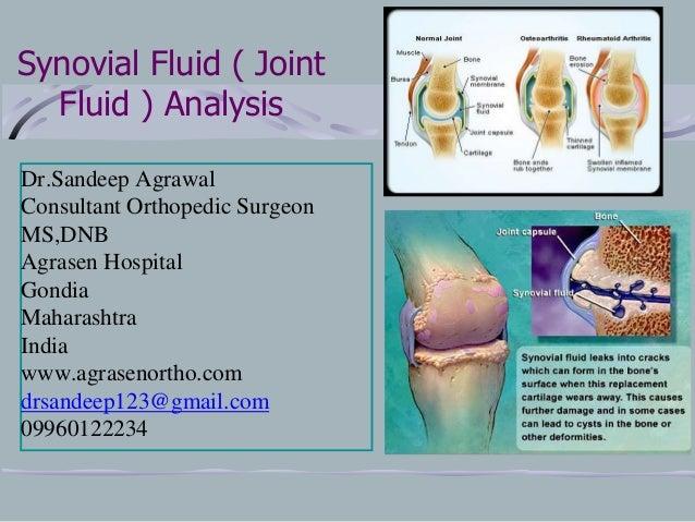 Synovial Fluid ( Joint Fluid ) Analysis Dr.Sandeep Agrawal Consultant Orthopedic Surgeon MS,DNB Agrasen Hospital Gondia Ma...