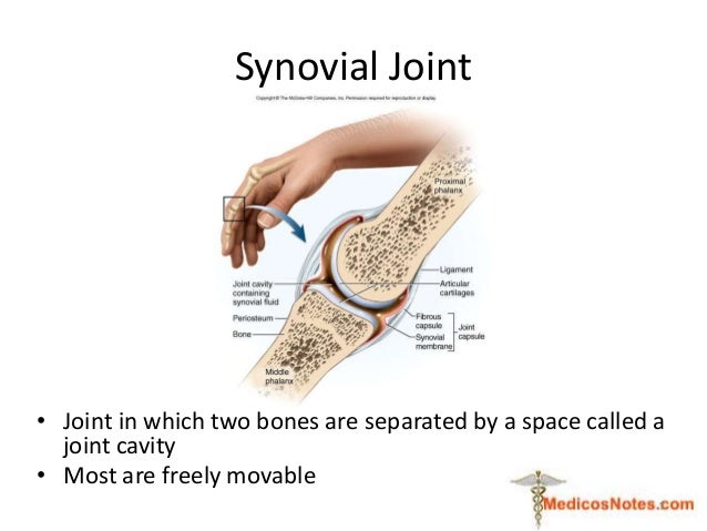 Synovial Joint • Joint in which two bones are separated by a space called a joint cavity • Most are freely movable 1