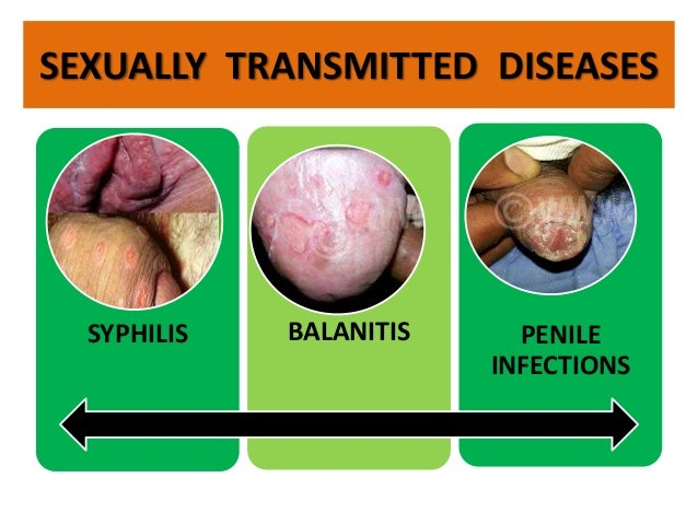 treatment sexual transmitted disease