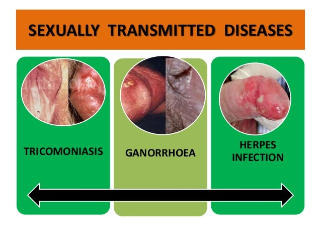 Stds transmitted by oral sex