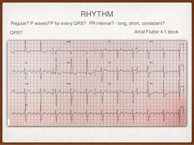 Systematic ECG analysis
