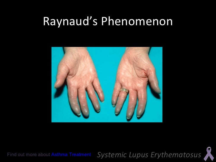 Systemic lupus erythematosus systemic lupus erythematosus 17 sciox Image collections