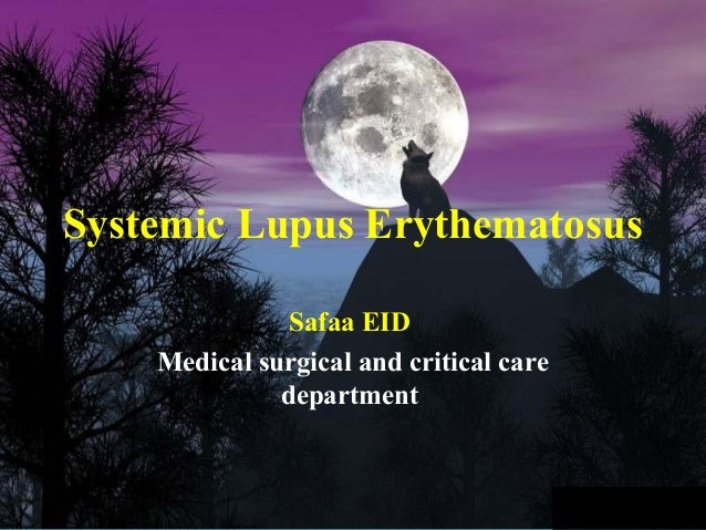 Systemic Lupus Erythematosus               Safaa EID    Medical surgical and critical care              department
