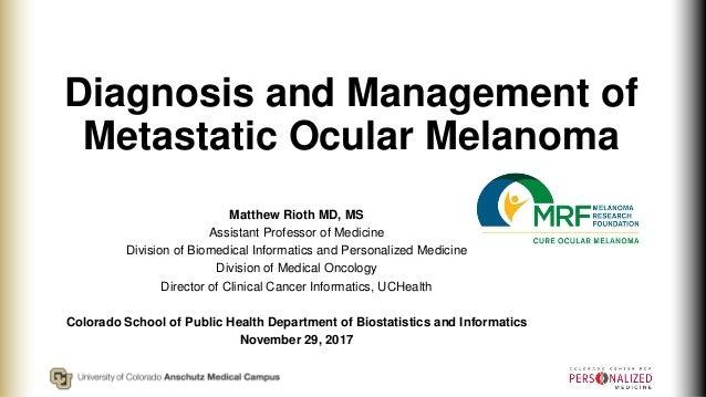 Diagnosis and Management of Metastatic Ocular Melanoma Matthew Rioth MD, MS Assistant Professor of Medicine Division of Bi...