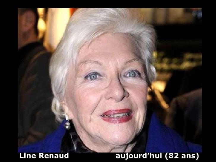 Line Renaud  aujourd'hui (82 ans)