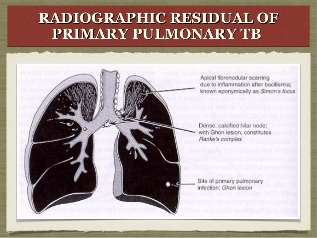 primary complex Primary complex was found in most of the children, and haematogenous foci in  adults the respiratory tract thus appears to be the route of entry of the tubercle.