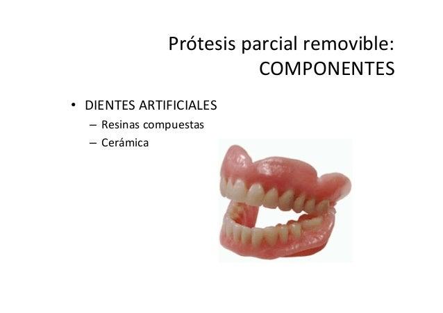Concepto de protesis for Concepto de ceramica