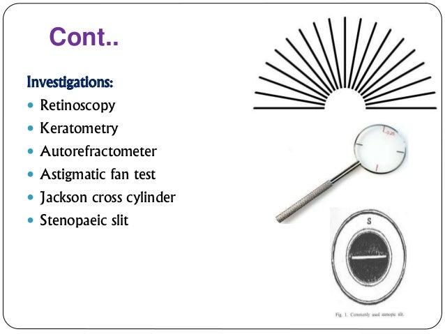 Astigmatism correction