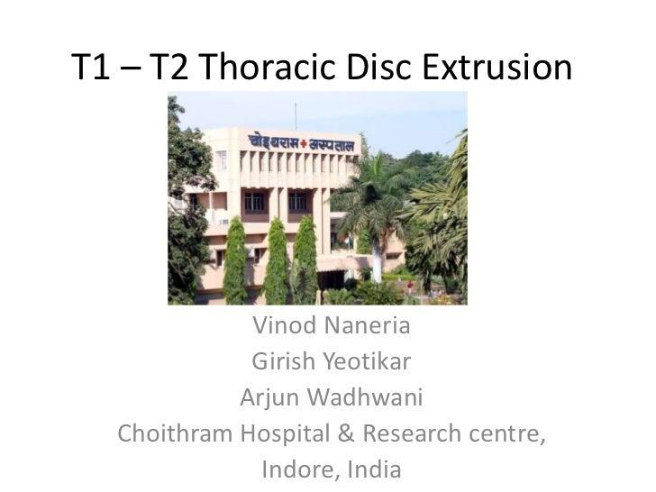 T1 – T2 Thoracic Disc Extrusion             Vinod Naneria             Girish Yeotikar            Arjun Wadhwani  Choithram...