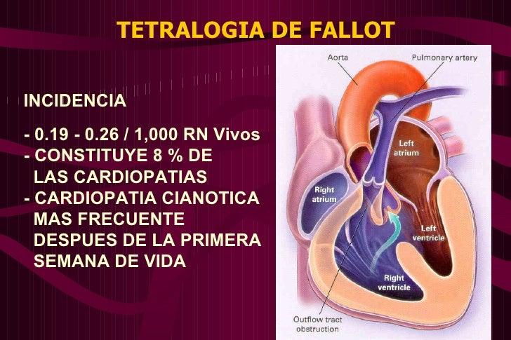 TETRALOGIA DE FALLOT INCIDENCIA - 0.19 - 0.26 / 1,000 RN Vivos - CONSTITUYE 8 % DE  LAS CARDIOPATIAS - CARDIOPATIA CIANOTI...