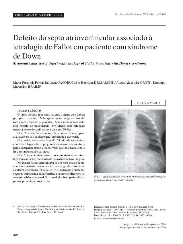 422 1. Serviço de Cirurgia Cardiovascular Pediátrica de São José do Rio Preto – Hospital de Base – Faculdade de Medicina d...