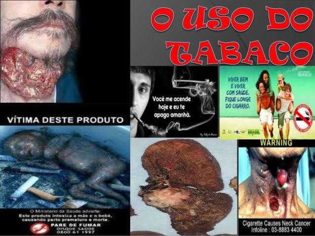 Definição: O tabaco é uma planta cujo nome científico é Nicotiana tabacum, da qual é extraída uma substância de efeito est...